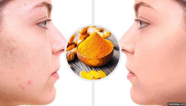 درمان آکنه و جوش صورت با زردچوبه و روغن نارگیل به روش طب سنتی